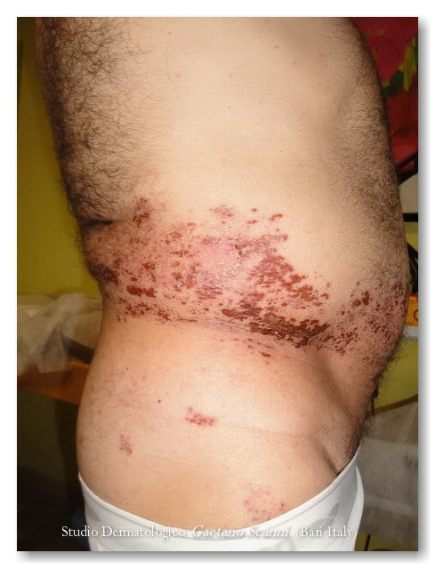 cancro terminale sintomi